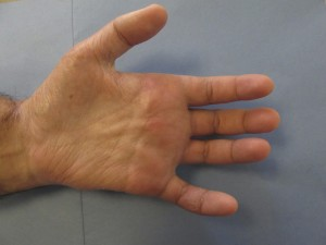 Hand Surgery | Dr. Nicholas Bastidas, New York Craniofacial and Plastic Surgeon