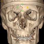 Facial Fractures | Dr. Nicholas Bastidas, New York Craniofacial and Plastic Surgeon