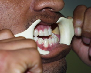 2 Jaw Surgery
