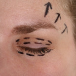 Aesthetic Eyebrow Surgery | Dr. Nicholas Bastidas, New York Craniofacial and Plastic Surgeon