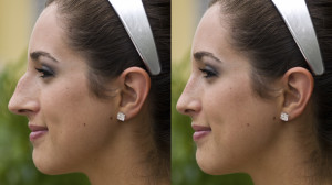 Rhinoplasty Surgery | Dr. Nicholas Bastidas, New York Craniofacial and Plastic Surgeon