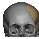 Cranioplasty | Dr. Nicholas Bastidas, New York Craniofacial and Plastic Surgeon
