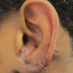 Ear Reconstruction Postoperative