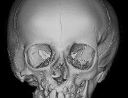 Mandibular Hypoplasia