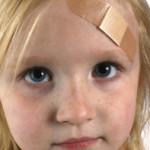Scar Revision/Trauma