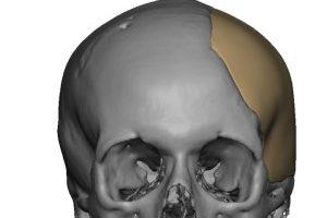 Cranioplasty